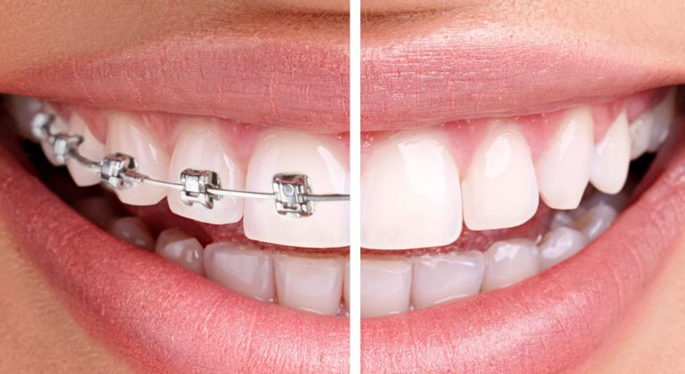 Jewels — украшение зубов драгоценными камнями