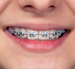wisdom-oral-health-orthodontic-braces